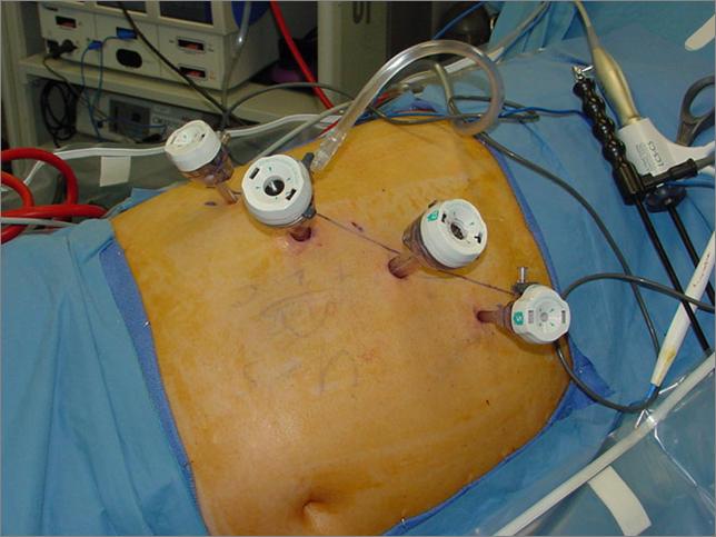 Установка троакаров для инструментов при лапароскопической операции на надпочечнике