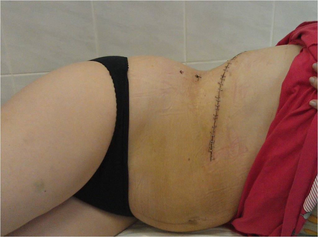Косметический результат открытой операции по удалению надпочечника