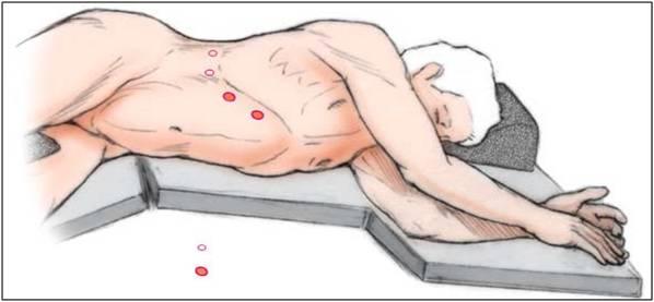 Положение пациента для проведения лапароскопической операции на надпочечниках