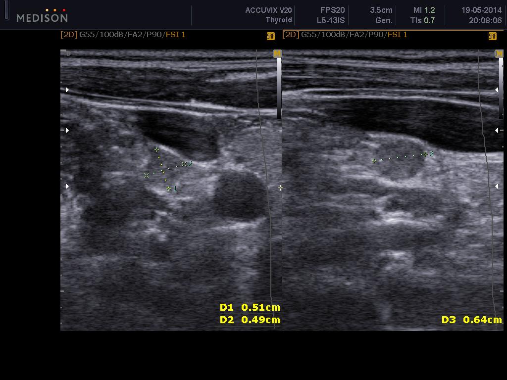 Метастаз папиллярного рака щитовидной железы в лимфоузел - УЗИ