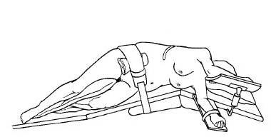 Положение пациента на столе для открытой операции на надпочечниках